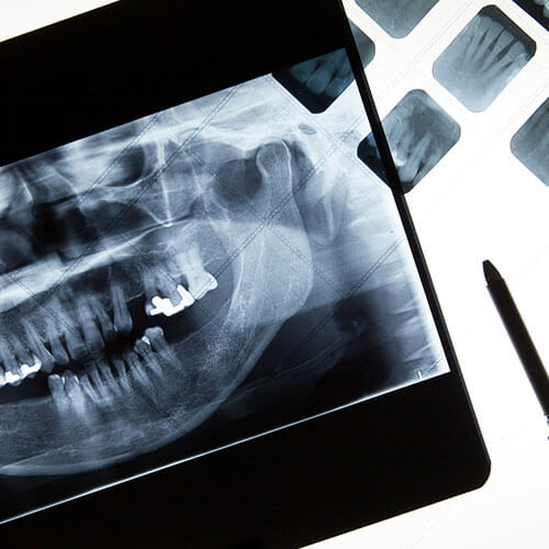 X-rays-pic